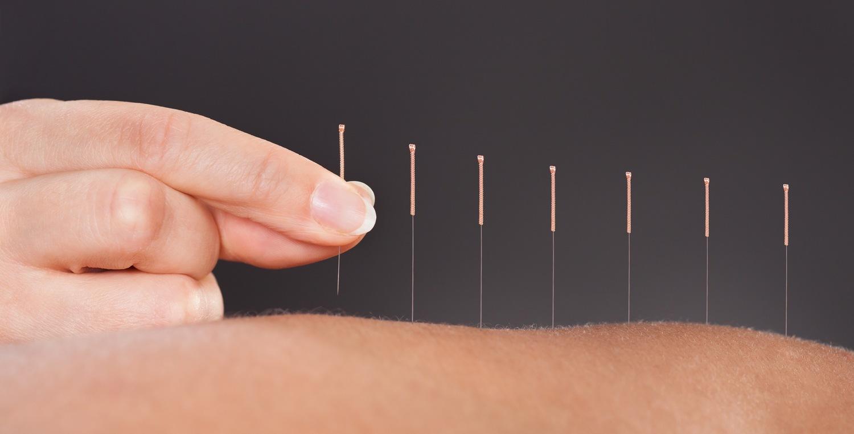 Kết quả hình ảnh cho Acupuncture